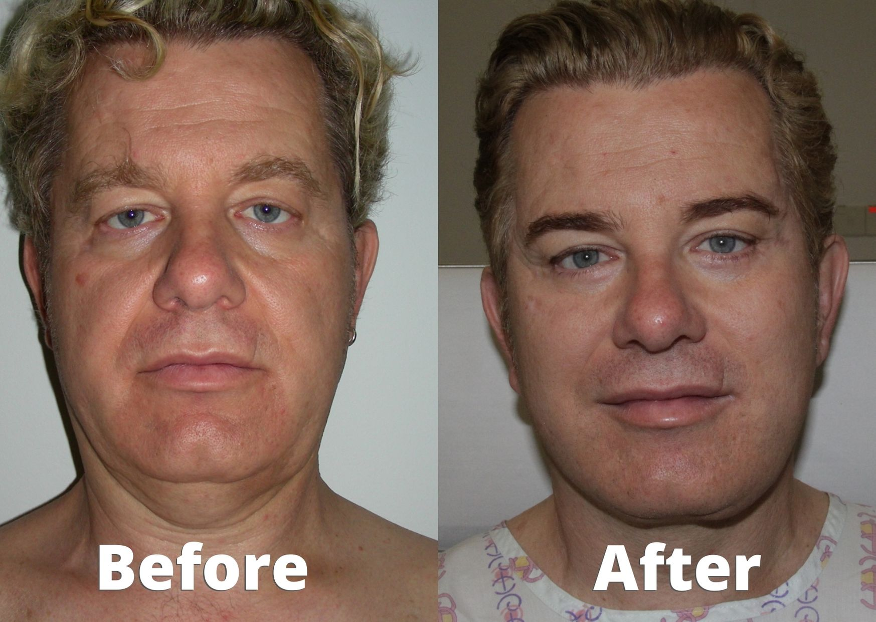 face lift male